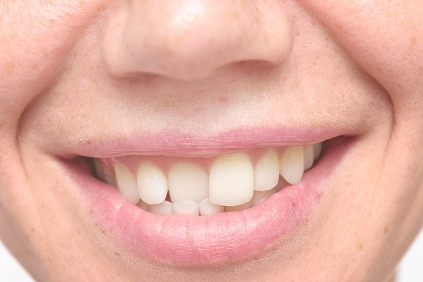 Can Porcelain Veneers Fix Crooked Teeth? | Oakton, VA
