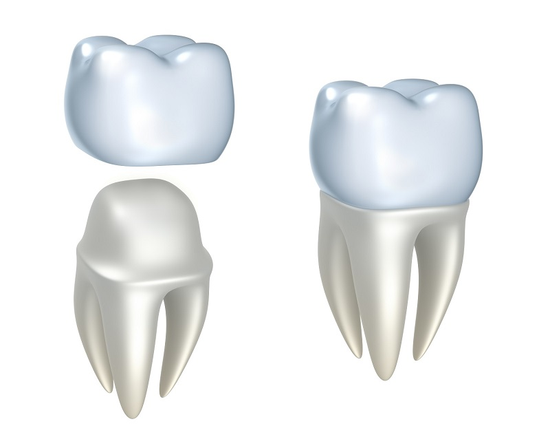 Diagram of porcelain dental crowns