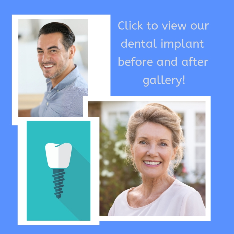 View Softouch Dental Care's dental implant before and after gallery