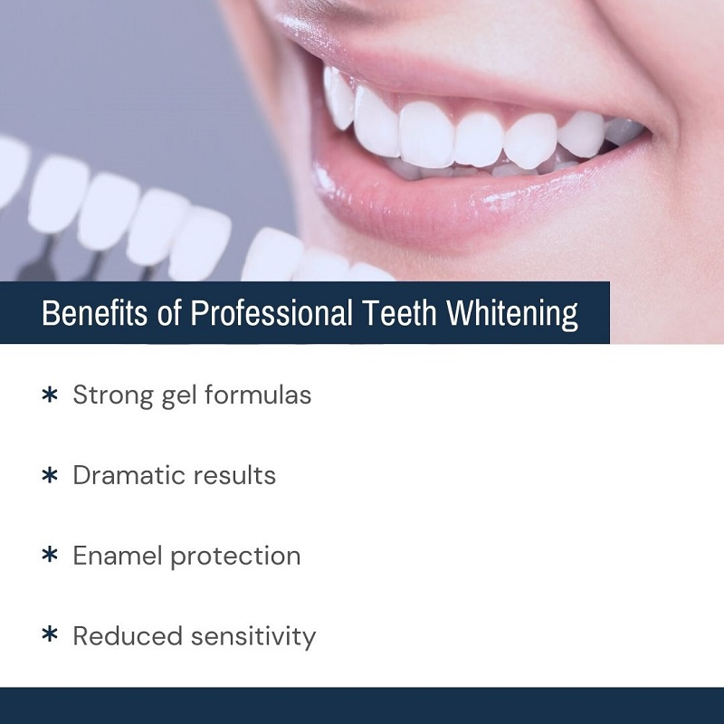 Benefits of professional teeth whitening in Oakton